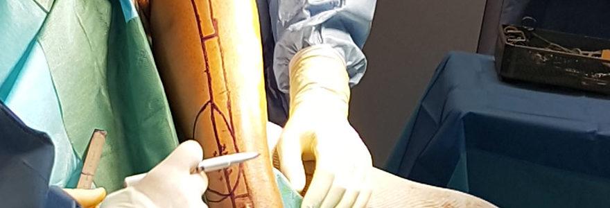 chirurgie du membre inférieur